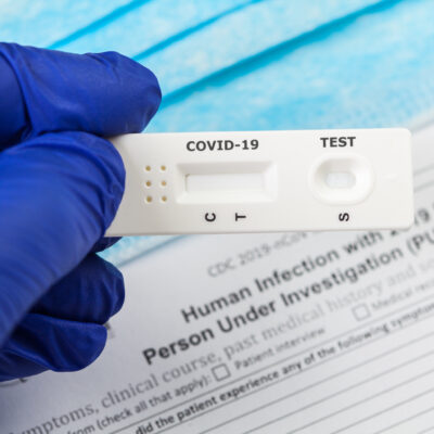 A doctor with a COVID-19 rapid test.