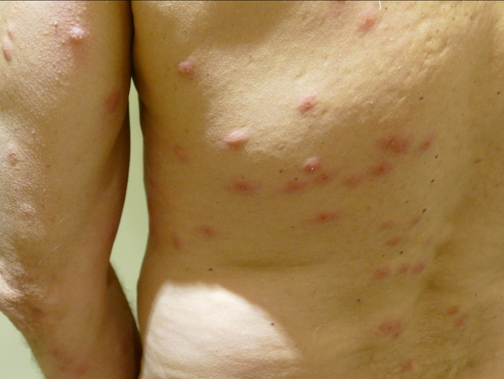 Bed bug bites on a man's back and arms.