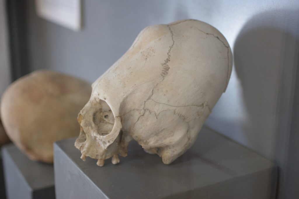 The elongated skulls of the Paracas people.